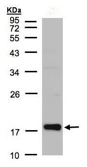 Western blot - Cofilin 2 antibody (ab96678)