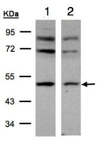 Western blot - AP2M1 antibody (ab96679)