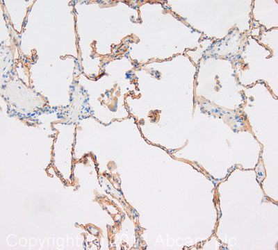 Immunohistochemistry (Formalin/PFA-fixed paraffin-embedded sections) - Anti-CD55 antibody (ab96680)