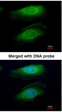 Immunocytochemistry/ Immunofluorescence - RICTOR antibody (ab96687)