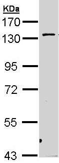 Western blot - PKN2 antibody (ab96688)