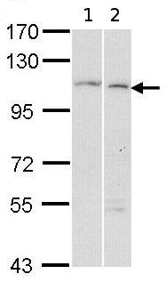 Western blot - alpha Glucosidase II antibody (ab96703)