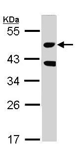 Western blot - MST3 antibody (ab96705)