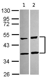 Western blot - SQSTM1 / p62 antibody (ab96706)