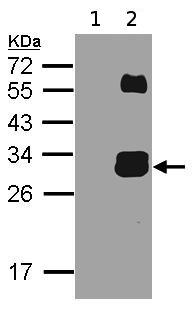 Western blot - Kallikrein 7 antibody (ab96710)