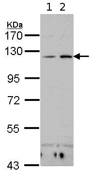 Western blot - CD11c antibody (ab96711)