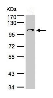 Western blot - NCKAP1 antibody (ab96715)