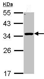 Western blot - HSD11B1 antibody (ab96724)