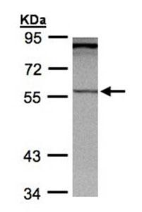 Western blot - PCCB antibody (ab96729)