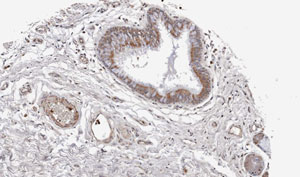 Immunohistochemistry (Formalin/PFA-fixed paraffin-embedded sections) - Wnt11 antibody (ab96730)