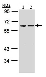 Western blot - ZNF306 antibody (ab96731)