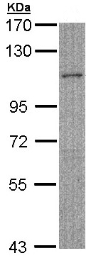 Western blot - MYBPC2 antibody (ab96739)