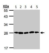 Western blot - Proteasome 20S alpha 2 antibody (ab96747)