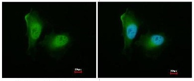 Immunocytochemistry/ Immunofluorescence - Proteasome 20S alpha 2 antibody (ab96747)