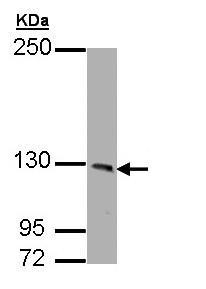 Western blot - PHKA1 antibody (ab96752)