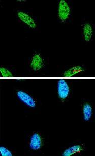 Immunocytochemistry/ Immunofluorescence - IPMK antibody (ab96753)