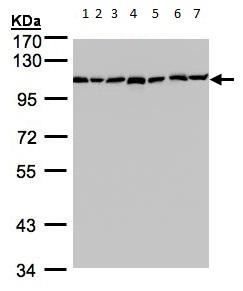Western blot - alpha Glucosidase II antibody (ab96757)