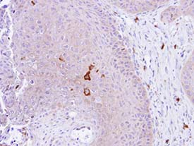 Immunohistochemistry (Formalin/PFA-fixed paraffin-embedded sections) - PADI4 / PAD4 antibody (ab96758)