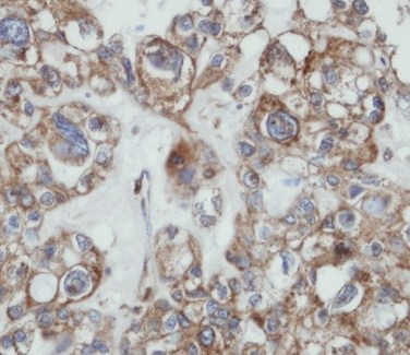 Immunohistochemistry (Formalin/PFA-fixed paraffin-embedded sections) - SAMHD1 antibody (ab96768)