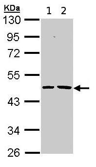Western blot - Epoxide hydrolase antibody (ab96774)