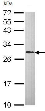 Western blot - DCXR antibody (ab96778)