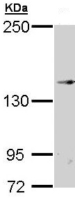 Western blot - TRPM2 antibody (ab96785)