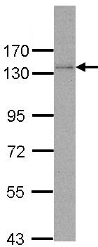 Western blot - DNA Polymerase delta, catalytic subunit antibody (ab96796)