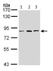 Western blot - ATP6V0A2 antibody (ab96803)