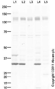 Western blot - PDGF Receptor alpha antibody (ab96806)