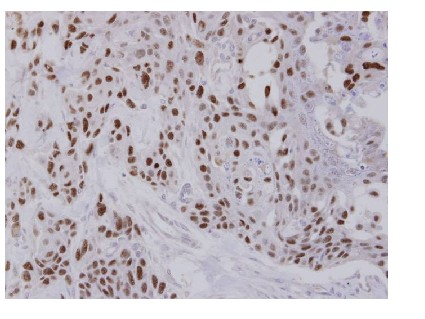 Immunohistochemistry (Formalin/PFA-fixed paraffin-embedded sections) - Transcription factor 25 antibody (ab96813)