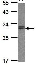 Western blot - Anti-NSMCE1 antibody (ab96815)