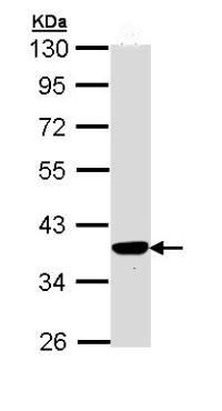 Western blot - PIG3 antibody (ab96819)
