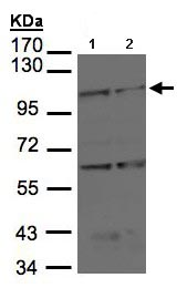 Western blot - BMPR2 antibody (ab96826)