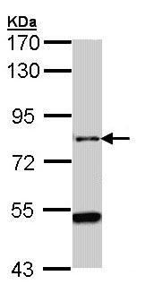 Western blot - AGAP1 antibody (ab96827)