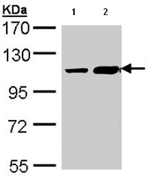 Western blot - ALS2CR3 antibody (ab96839)