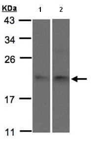 Western blot - SNX12 antibody (ab96840)
