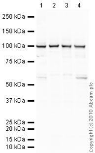 Western blot - Goat polyclonal Secondary Antibody to Mouse IgG - H&L (HRP), pre-adsorbed (ab97040)