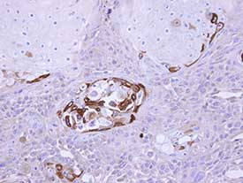 Immunohistochemistry (Formalin/PFA-fixed paraffin-embedded sections) - SOCS5 antibody (ab97283)