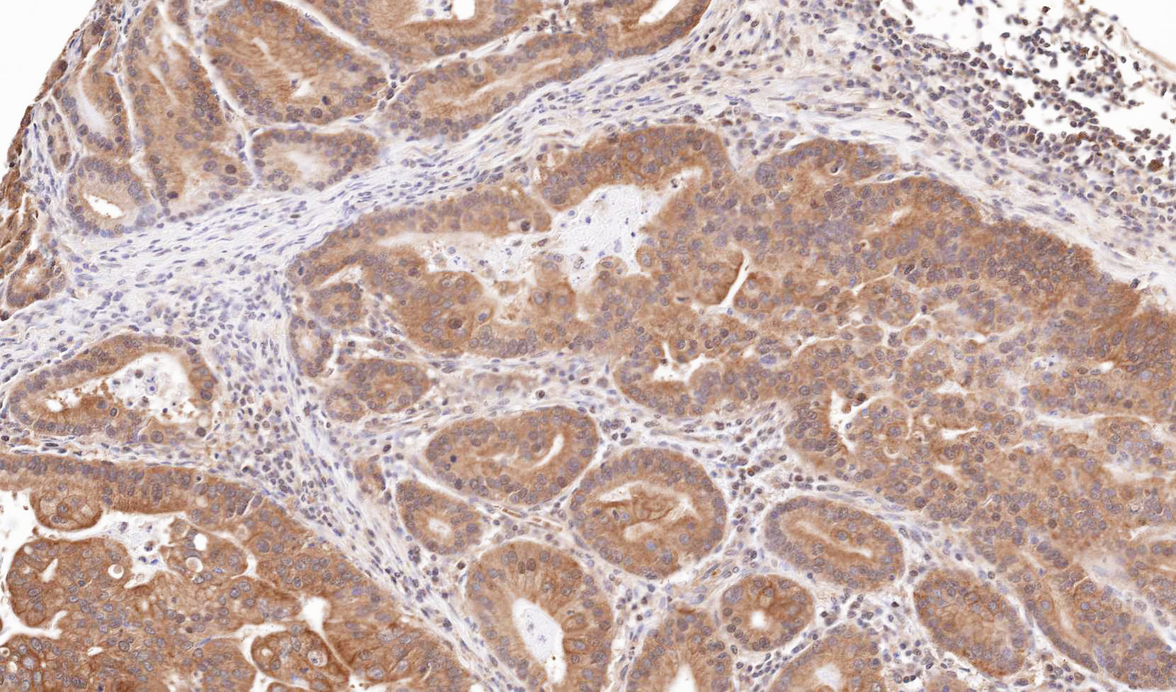Immunohistochemistry (Formalin/PFA-fixed paraffin-embedded sections) - TRIM23 antibody (ab97291)