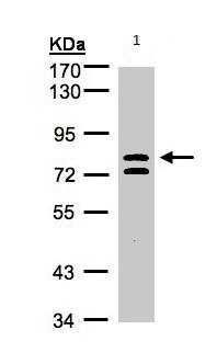 Western blot - L3MBTL1 antibody (ab97304)