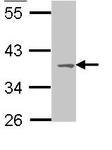 Western blot - MC1 Receptor antibody (ab97321)