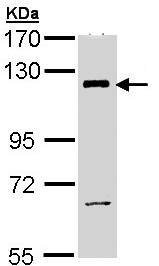 Western blot - PI3 Kinase p110 beta antibody (ab97322)