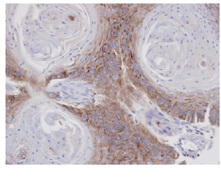 Immunohistochemistry (Formalin/PFA-fixed paraffin-embedded sections) - Annexin VII antibody (ab97323)