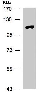 Western blot - MTMR4 antibody (ab97326)