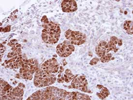 Immunohistochemistry (Formalin/PFA-fixed paraffin-embedded sections) - S100A11 antibody (ab97329)