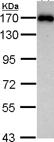Western blot - AIP1 antibody (ab97343)