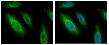 Immunocytochemistry/ Immunofluorescence - Argininosuccinate Lyase antibody (ab97370)