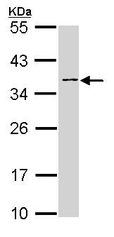 Western blot - Blood Group Antigen Precursor antibody (ab97372)