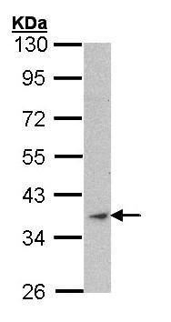 Western blot - skeletal muscle Actin antibody (ab97374)
