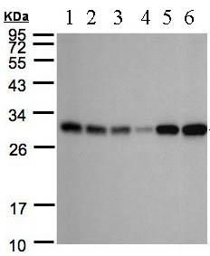 Western blot - AK3L1 antibody (ab97382)